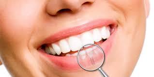 Rivolgiti al dottor Cannizzo per un intervento di implantologia dentale