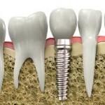 Clinica specializzata in implantologia dentale